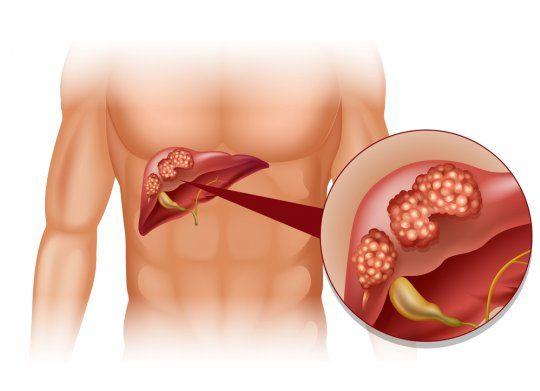 Цироз печінки у чоловіків і жінок