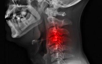 Деформуючий спондильоз шийного, поперекового і грудного відділу хребта