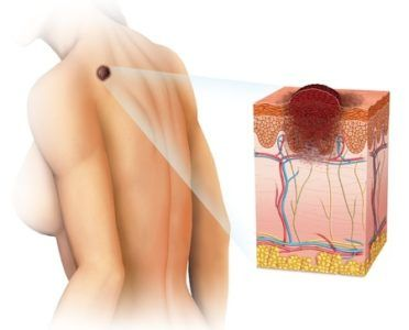 Діагностика меланоми шкіри і прогнози тривалості життя