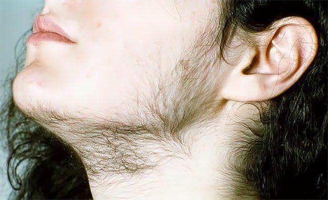 Гиперандрогения у жінок: залиште вуса чоловікам!
