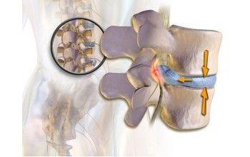 Грижа шморля поперекового відділу хребта