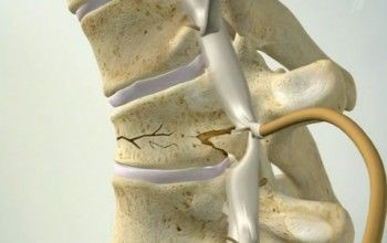 захворювання хребта