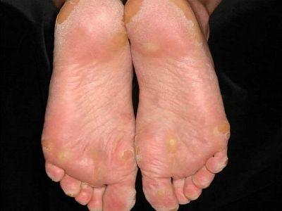 Які характерні прояви кератодермії підошов?
