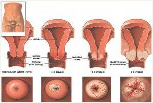 Лейкоплакія шийки матки: традиційна медицина vs народні засоби