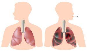 Очищення легенів після відмови від куріння