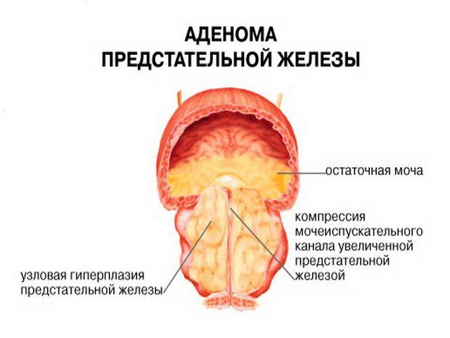 Операція з видалення аденоми простати