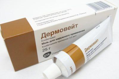 Особливості лікування атопічного дерматиту в домашніх умовах