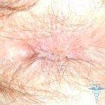 Анальний прищик на анусі: прищ в задньому проході і на сфинктере