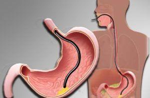 Поліпи в шлунку