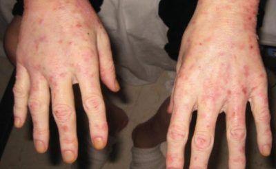 Ознаки та лікування захворювання пелагра
