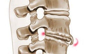 Прояв спондилеза попереково-крижового відділу хребта. Методи діагностики та лікування