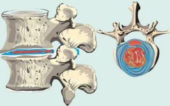 Симптоми, причини та методи лікування протрузії шийного відділу хребта