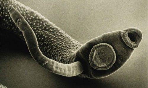 Сучасні методи діагностики та аналізи на паразитів