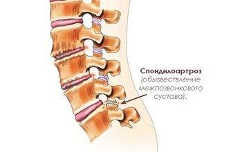 Спондилоартроз поперекового відділу хребта