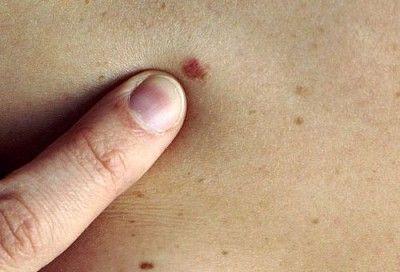 Видалення родимок на тілі: які небезпеки таїть процедура, чи можна робити її самостійно