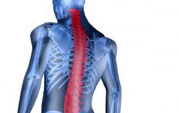 Пронизлива гострий біль в шийному відділі хребта - симптом ункоартроз