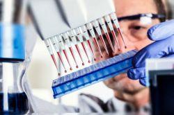 Види і розшифровка аналізу на токсоплазмоз